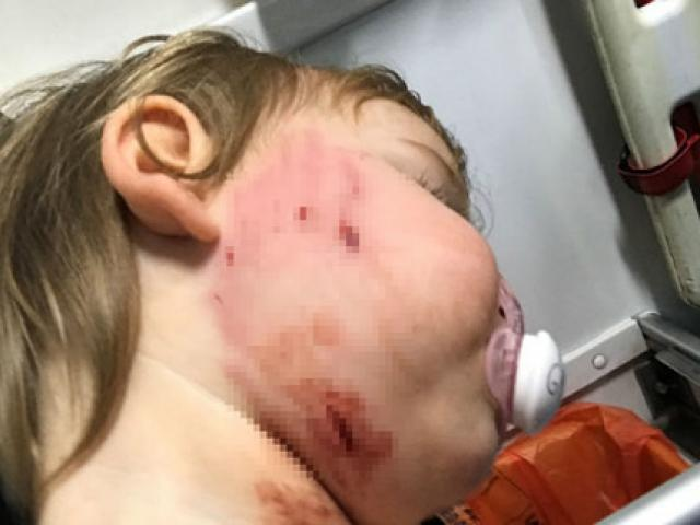 Bé gái 18 tháng tuổi bị chó cắn rách mặt, chủ chó thờ ơ đứng nhìn rồi bỏ đi