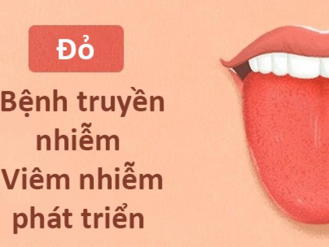 Màu lưỡi nói lên tình trạng sức khỏe của bạn thế nào?