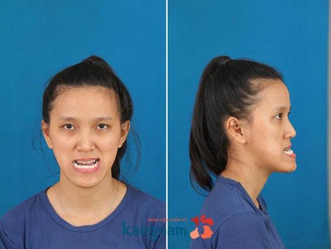 """Nhìn lại chân dung của các thí sinh """"Hành trình lột xác"""" trước phẫu thuật - 2"""