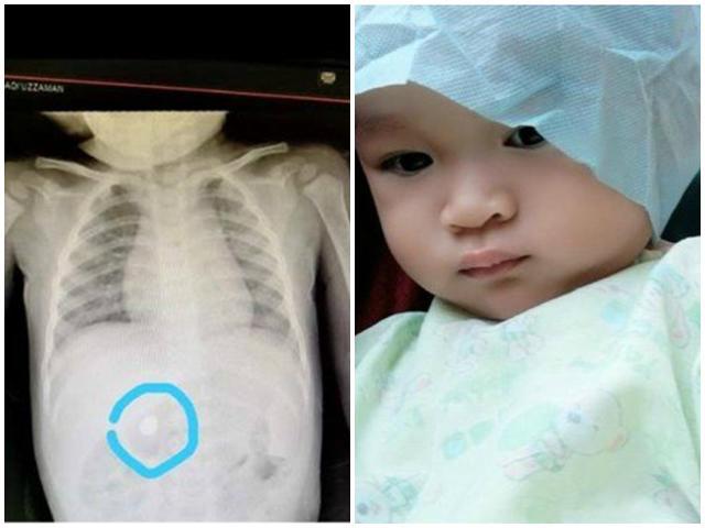 Cục pin đổi màu, rỉ sét chỉ sau 1  ngày nằm trong bụng bé trai