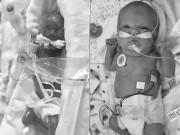 Sự   chuyển mình   đáng kinh ngạc của cô bé sinh non 23 tuần khiến ai cũng xúc động