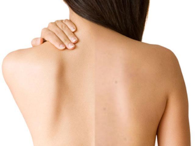 Dù lưng có nhiều mụn và vết thâm đến mấy cũng sạch bách với những cách này
