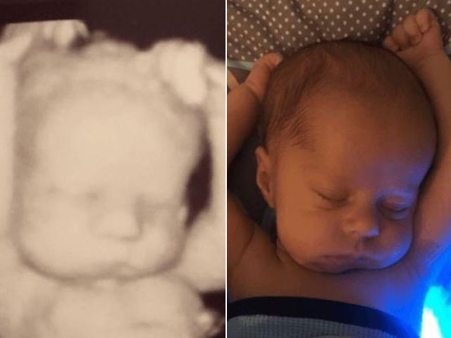 Bé 3 tuần tuổi nằm duỗi tay ngủ bá đạo như trong ảnh siêu âm khiến nhiều người thích thú