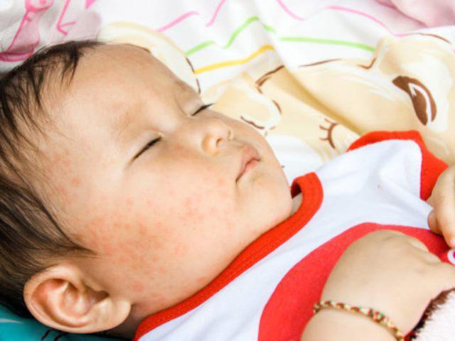 Sốt phát ban ở trẻ: Dấu hiệu chính xác để phát hiện bệnh