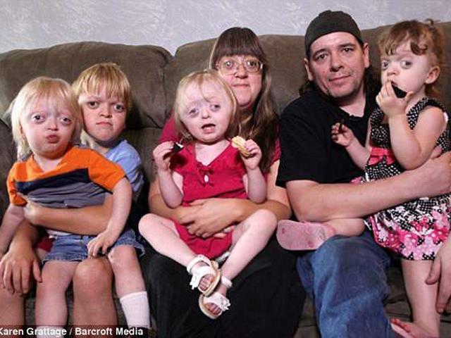 Sinh ra 4 đứa con gương mặt quái dị, người mẹ khổ sở vì bị đem ra làm trò cười