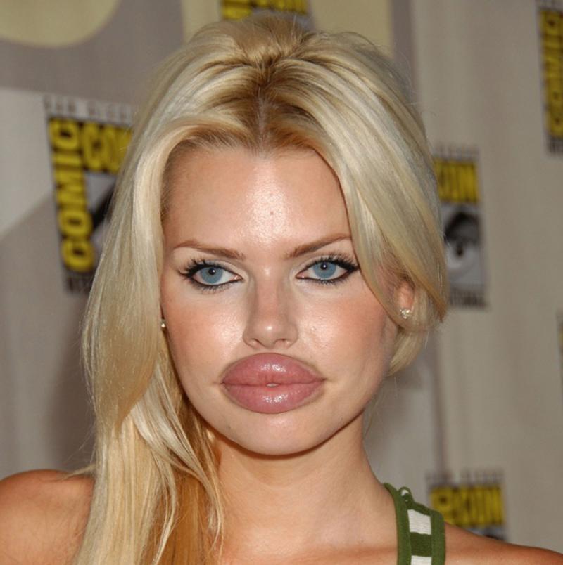 Mong muốn có đôi môi căng mọng những nhiều chị em lạinhận phảikết đắng!