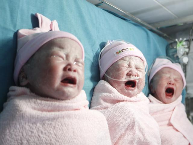 Mang đa thai hiếm gặp tại vết mổ cũ, sản phụ sinh 3 thiên thần đáng yêu, nặng trên 2,5kg