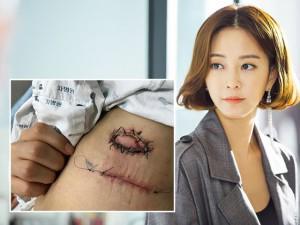 """Sau ca phẫu thuật khối u mỡ, """"Chị Đại"""" Han Ye Seul bức xúc vì vết thương bị lở loét"""