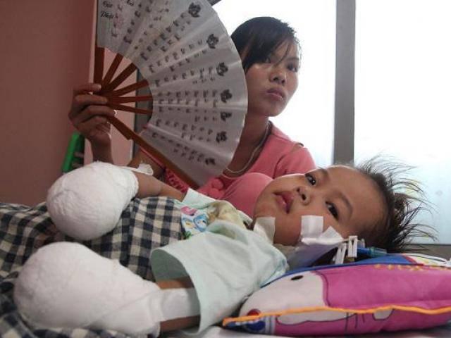 Mẹ bé gái tay chân hoại tử sau cơn sốt ban đêm: Thế là con mất hết tay, chân rồi