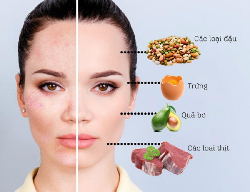Với làn da khô nẻ, bạn tăng cường vitamin E cho cơ thể.