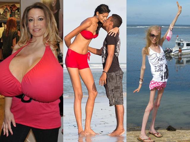 Những người phụ nữ kỳ lạ nhất hành tinh (P1): Từ bộ ngực 14kg đến vòng eo 38cm