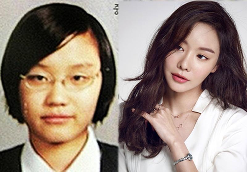 Kim Ah Joong nhờ phẫu thuật thẩm mỹ đã có mặt thon đúng chuẩn.