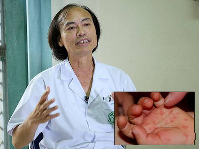 Bệnh tay chân miệng ở trẻ em: 6 việc mẹ cần làm tại nhà để bé nhanh khỏi