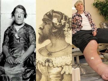 """Những người phụ nữ kỳ lạ nhất (P1): Từ khuôn mặt đàn ông đến """"người vượn"""" đi diễn xiếc"""