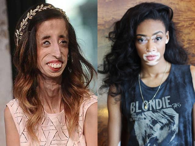 Những người phụ nữ kỳ lạ nhất thế giới (P3): Cô gái ngoài hành tinh và cô gái ngựa vằn