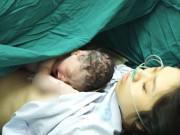 """Bác sĩ Bệnh viện Phụ sản TW:  """" Sinh mổ có nhiều nguy cơ cho cả mẹ và bé """""""