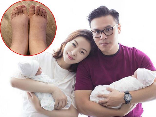 Sinh đôi con gái cho đại gia, chân dài Hong Kong lộ đôi chân sưng phù đáng sợ