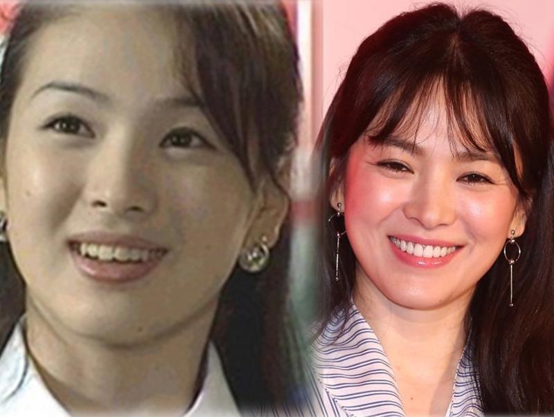 Song Hye Kyo đã trở thành biểu tượng nhan sắc sau khi chỉnh răng.