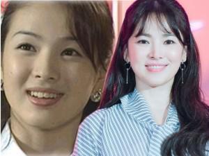 Không riêng gì Song Hye Kyo, nhiều Sao cũng thành mỹ nhân nhờ chỉnh răng!