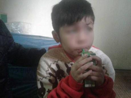 Bé trai ở Hà Nội bị bố và mẹ kế bạo hành đến gãy xương sườn giờ ra sao?