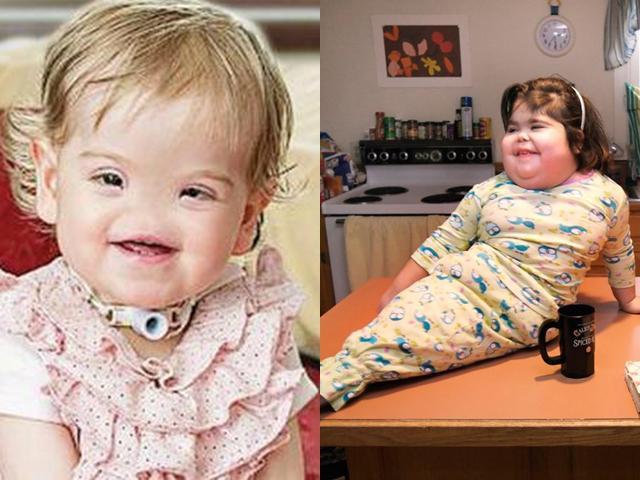 Những đứa trẻ kỳ lạ nhất thế giới (P1): Cậu bé có 300 chiếc răng, cô bé không mũi