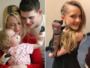 Sự thay đổi kinh ngạc sau 10 năm của cô bé từng bị viêm màng não phải cắt bỏ tay