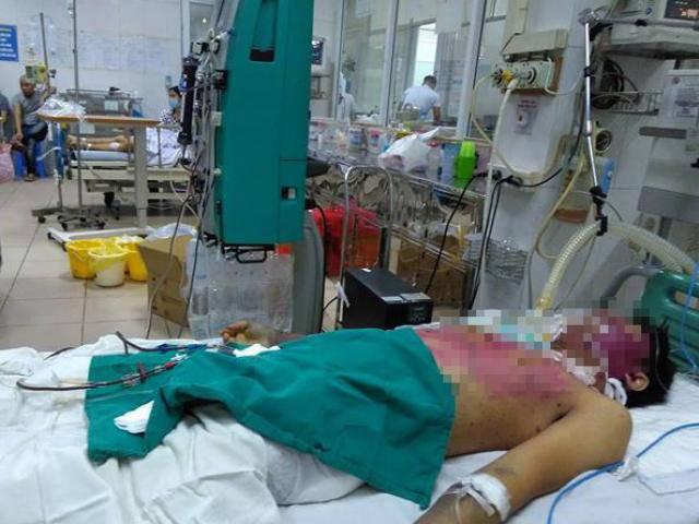 Tự ý mua thuốc điều trị thủy đậu tại nhà, 2 người chết, 1 người nguy kịch