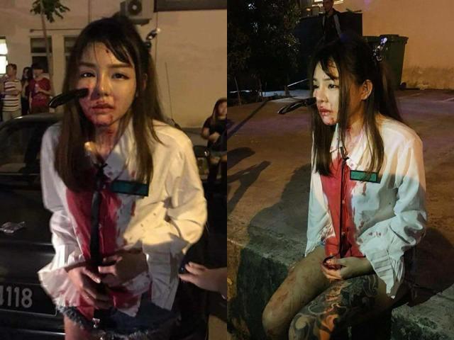 Bị cướp tấn công giữa đêm, cô gái vẫn bình tĩnh báo công an với con dao cắm giữa mặt