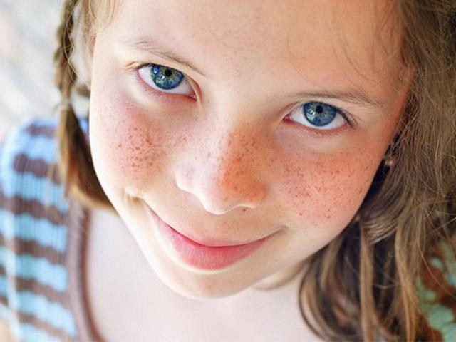 4 cách trị tàn nhang cho trẻ em, đơn giản và hiệu quả ngay với cả người lớn
