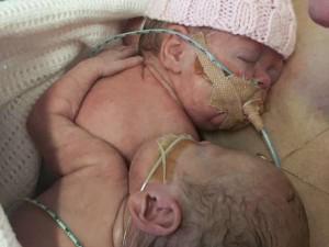 Bà bầu - Cay mắt với hành động của bé sinh non khi em gái song sinh sắp ra đi mãi mãi