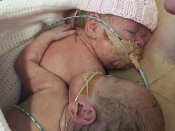 Cay mắt với hành động của bé sinh non khi em gái song sinh sắp ra đi mãi mãi