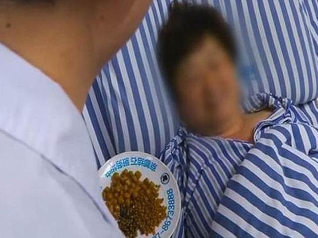 Người phụ nữ có 468 viên sỏi mật, nguyên nhân là từ thực phẩm hầu như ai cũng thích