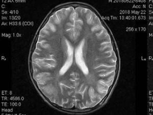 Uống hơn 1 lít rượu, bé trai phải nhập viện vì hôn mê, não bị tổn thương nghiêm trọng