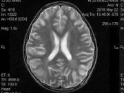 Sức khỏe - Uống hơn 1 lít rượu, bé trai phải nhập viện vì hôn mê, não bị tổn thương nghiêm trọng