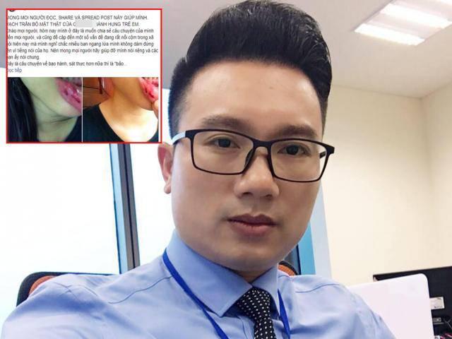 Toàn cảnh vụ việc nữ sinh 15 tuổi tố cáo anh rể là  BTV Thể thao Minh Tiệp bạo hành