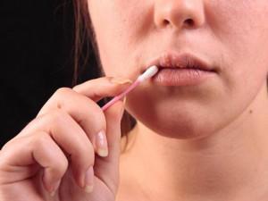 Mụn cóc sinh dục - Đừng chủ quan vì mụn cóc có thể chính là dấu hiệu bị ung thư