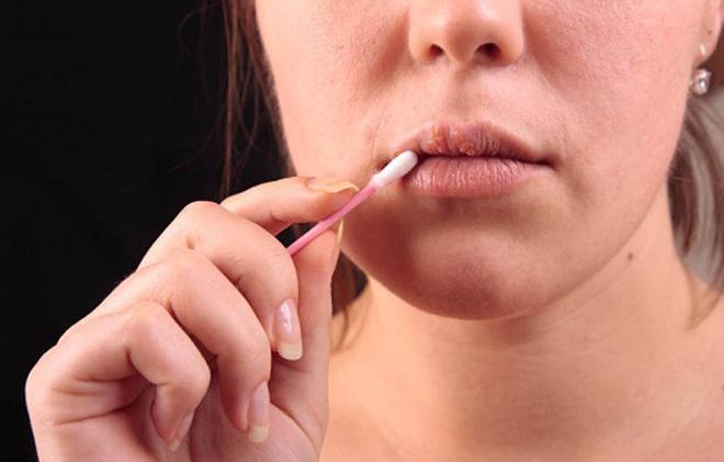Mụn cóc sinh dục - Đừng chủ quan vì mụn cóc có thể chính là dấu hiệu bị ung thư - 1