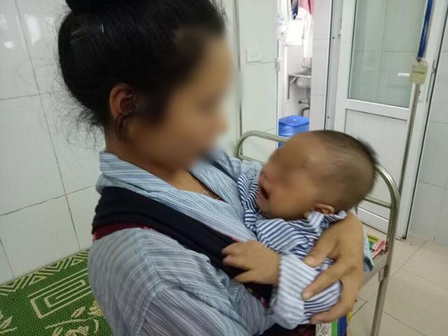 Mẹ vắt sữa chữa đỏ mắt cho con, bé trai 7 tháng tuổi phải bỏ một mắt vì hoại tử