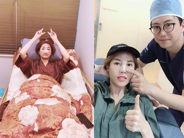 Quế Vân tiết lộ chi vài trăm triệu làm đẹp, công khai sang Hàn phẫu thuật lần thứ 6