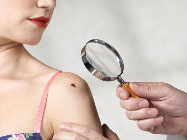 Chuyên gia mách kiểm tra ngay nốt ruồi trên cơ thể để nhận biết mắc ung thư hay không