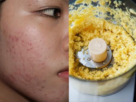 Hóa ra cách trị sẹo thâm trên mặt chỉ tóm tọn trong đống gia vị tủ bếp thôi sao!