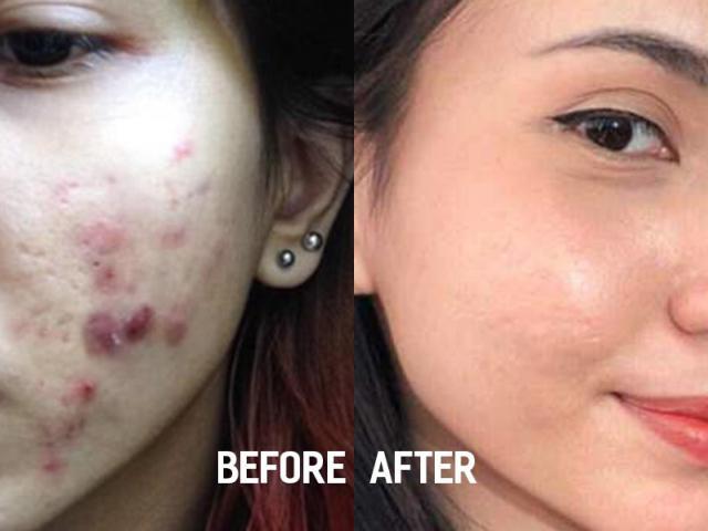 Hành trình trị mụn kiên trì 11 năm của cô gái gốc Việt gây chấn động báo nước ngoài