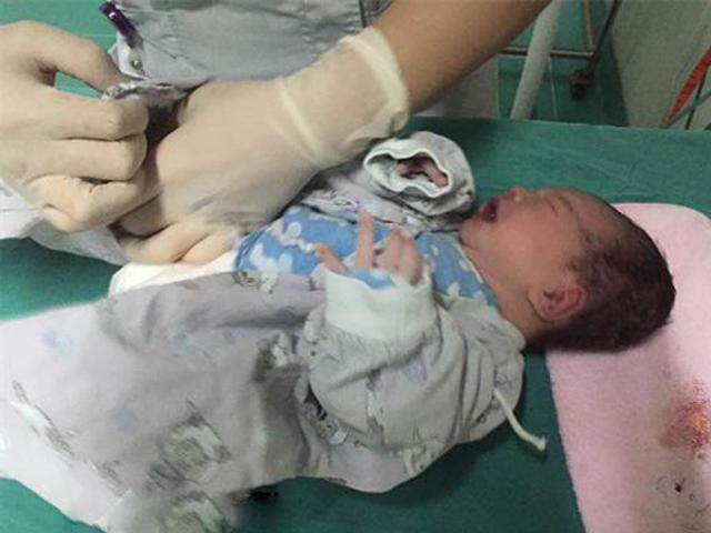 Thai nhi 7 tháng giảm chuyển động, bác sĩ choáng váng khi mổ cấp cứu lấy thai