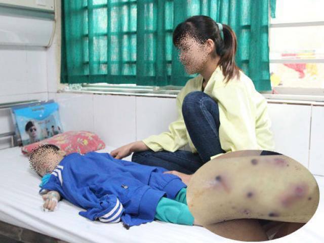 Tưởng con đỡ bệnh thủy đậu, gia đình xin ra viện, ai ngờ biến chứng lở loét toàn thân
