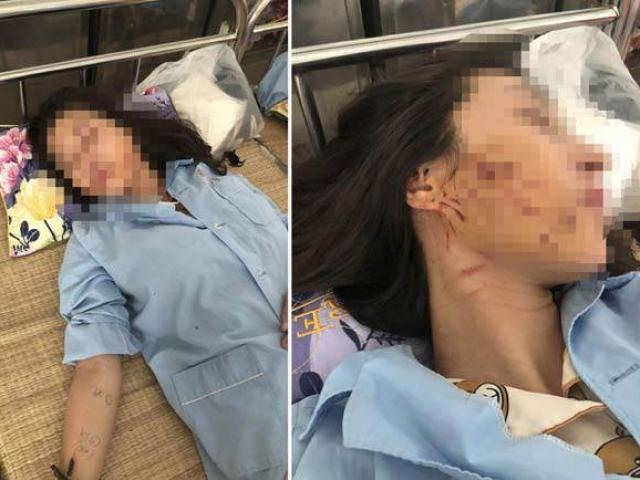 Vụ đánh ghen ở Thanh Hóa: Kiều nữ bị đổ nước mắm, bột ớt lên tiếng