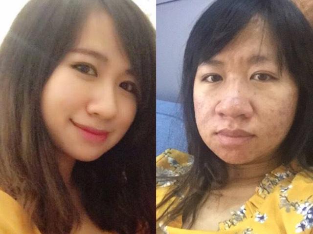 Mẹ trẻ tự nhận xấu như lợn gạo khi mang bầu, đến mức tụt huyết áp lúc soi gương