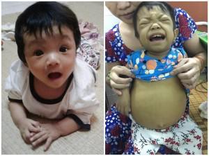 Tưởng tắm nắng chữa vàng da cho con sơ sinh, mẹ Việt rụng rời khi nghe bác sĩ kết luận