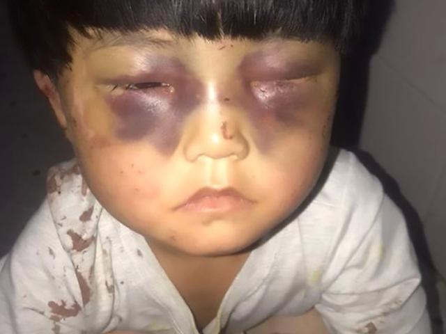 Bé gái 4 tuổi bị bố bạo hành tới mức mắt sưng và thâm tím, ai nhìn cũng xót xa