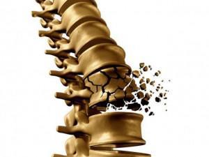 Bệnh loãng xương đang trẻ hóa, liệu bạn đã biết cách phòng ngừa?