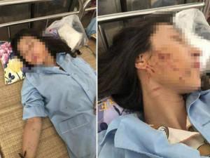 Tin mới vụ cô gái trẻ bị đổ nước mắm, muối ớt lên người: 3 phụ nữ bị khởi tố
